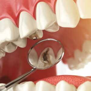Dentifrices protection caries