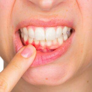 Dentifrices pour gencives et dents sensibles