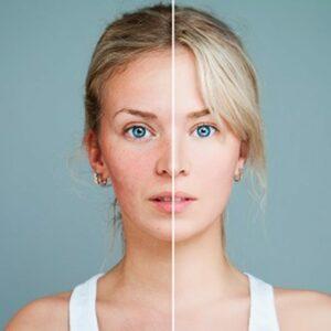 Soins anti-rougeurs et peaux sensibles