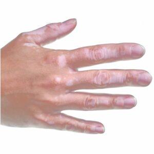 Soins anti-taches mains